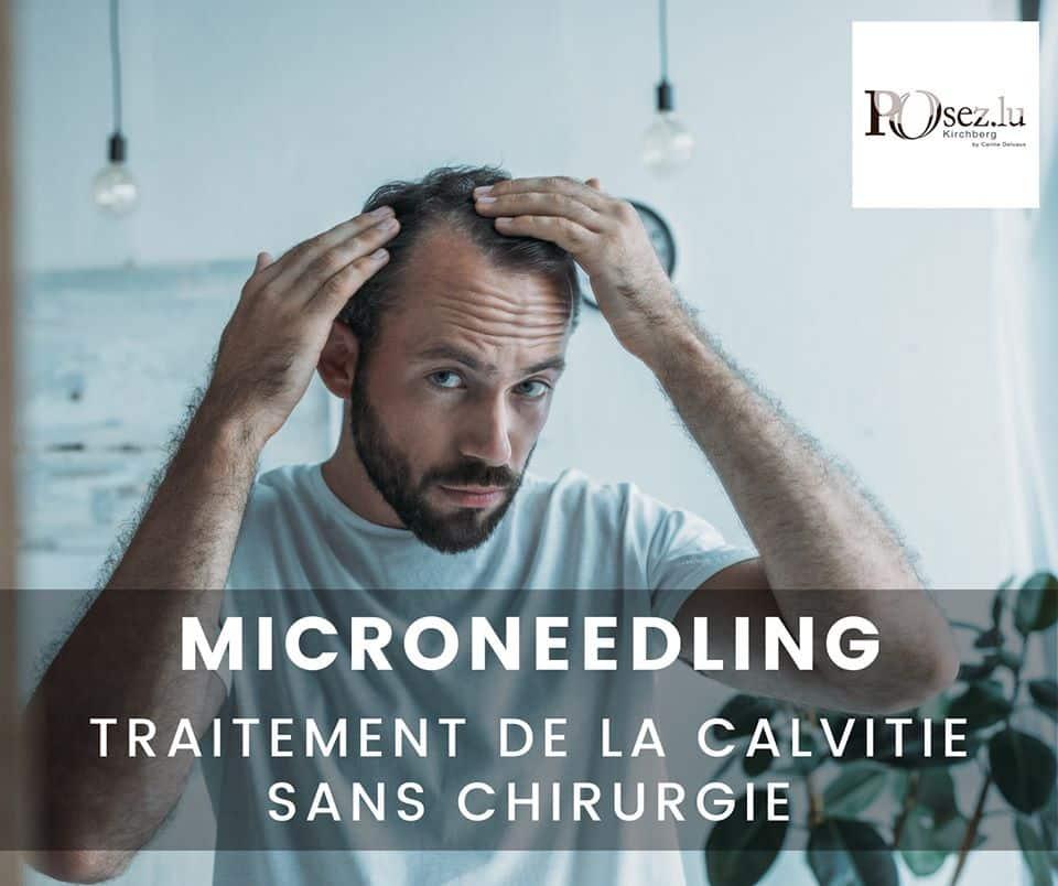 Microneedling Luxembourg : traitement de la calvitie sans chirurgie