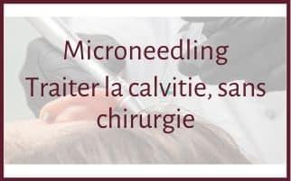 Microneedling : traitement de la calvitie sans chirurgie
