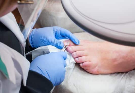Traitement au laser Diode contre la mycose de l'ongle de pied