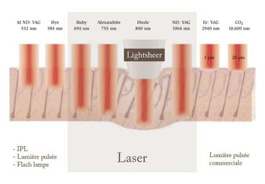 Laser LightSheer à diode Luxembourg